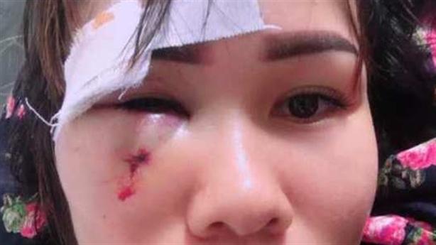 Cán bộ đấm rách mặt người phụ nữ: 'Do móng tay nhọn'