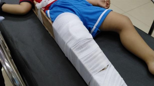 Bé trai gãy chân ở trường: Cô lấy chân để lên cổ?