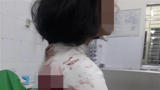 Vụ nữ sinh bị đâm trọng thương: 'Do tranh giành khách'