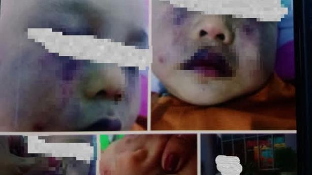 Nghi điểm giữ trẻ không phép bạo hành trẻ: Cháu tự ngã