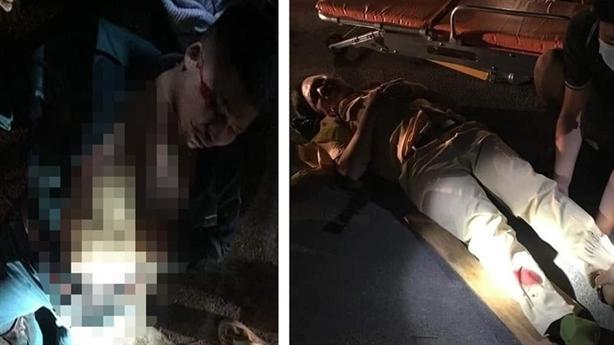 CSGT và dân phòng bị quái xế tông gãy chân